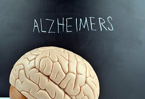 alzheimers - Copyright – Stock Photo / Register Mark