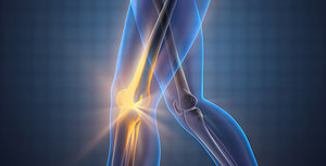 arthritis - Copyright – Stock Photo / Register Mark