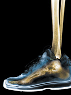 foot xray - Copyright – Stock Photo / Register Mark