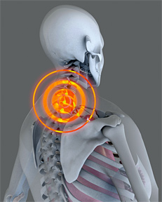 Neck pain 1 - Copyright – Stock Photo / Register Mark