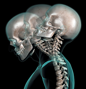 whiplash skeleton - Copyright – Stock Photo / Register Mark